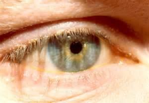Blepharitis| Common Vision Disorders | Family Eye Care