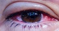 Conjunctivitis Bacterial| Common Vision Disorders | Family Eye Care