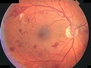Diabetic Retinopathy | Common Vision Disorders | Family Eye Care